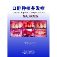 口腔种植并发症--病因预防和治疗医学书籍