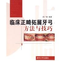 临床正畸拓展牙弓方法与技巧