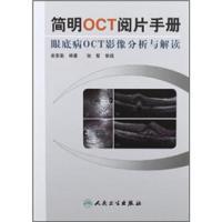 简明OCT阅片手册:眼底病OCT影像分析与解读